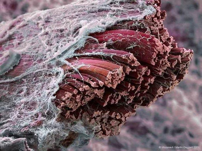 Muscle under a microscope.