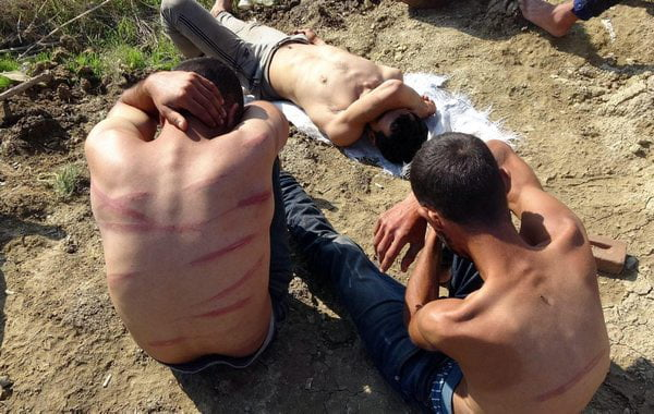 Turkey / Edirne: 13 Moroccan illegal migrants tried to cross to Greece illegaly. The Greek police beat them up, stripped them naked, whipped them and sent them back to Turkey.
