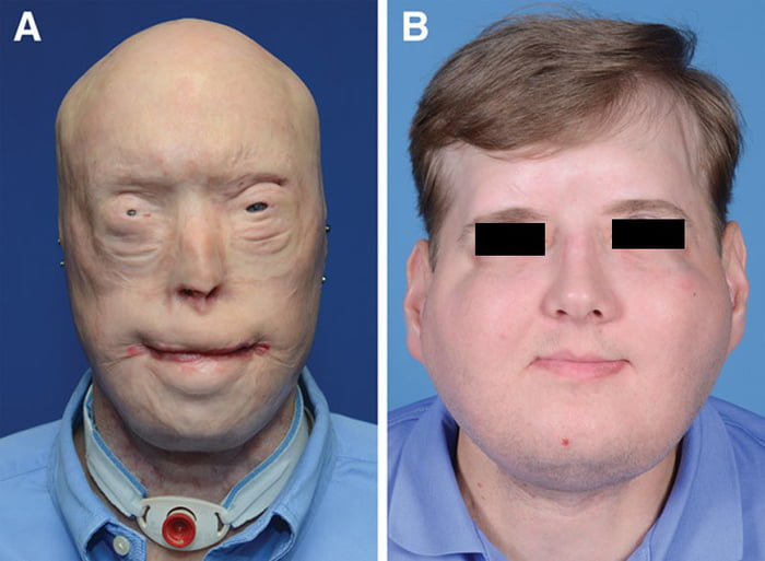 Before & After a total face, eyelids, ears, scalp, and skeletal subunit transplant